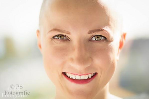 Glatze durch Chemotherapie, Haarverlust bei Brustkrebs